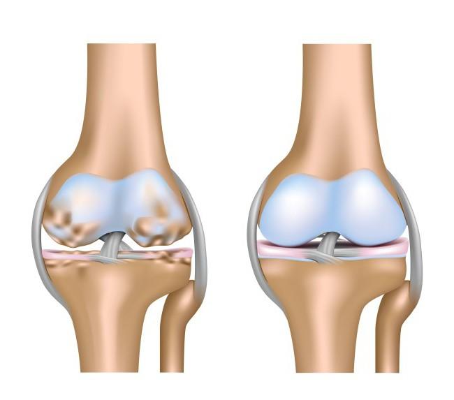 восстановление хрящевой ткани коленного сустава народными средствами