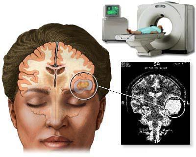 Боль в лобной части головы