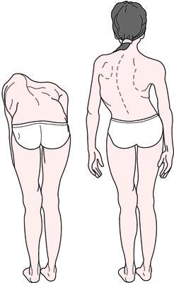 Комплекс упражнений по физкультуре на осанку