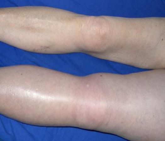 тромбоз глубоких вен нижних конечностей симптомы фото