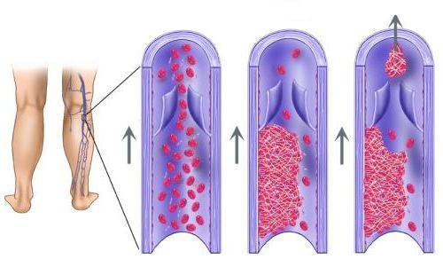 тромбоз глубоких вен нижних конечностей симптомы
