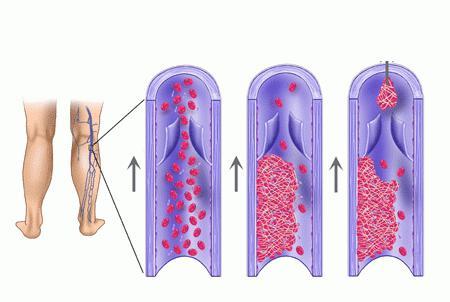 тромб в легких
