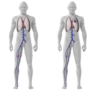 тромб в легких симптомы