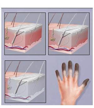 обморожение пальцев рук лечение