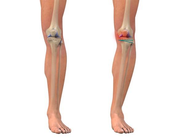 Первичный гонартроз коленного сустава лечение