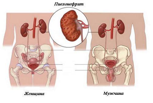 Причины, симптомы и лечение острого пиелонефрита