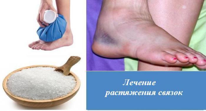 что делать при растяжении связок на ногах