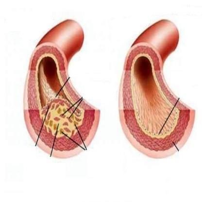 атеросклероз сосудов нижних конечностей симптомы