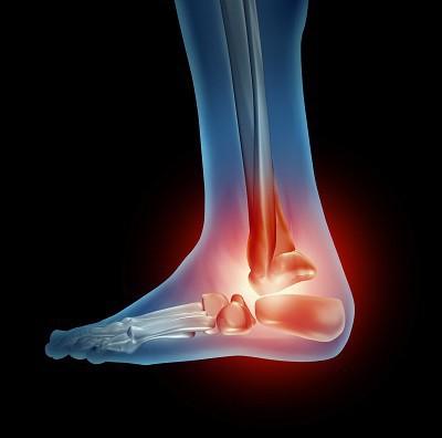 остеоартроз голеностопных суставов
