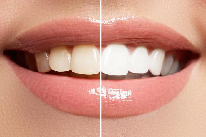 отбеливание зубов с помощью соды отзывы