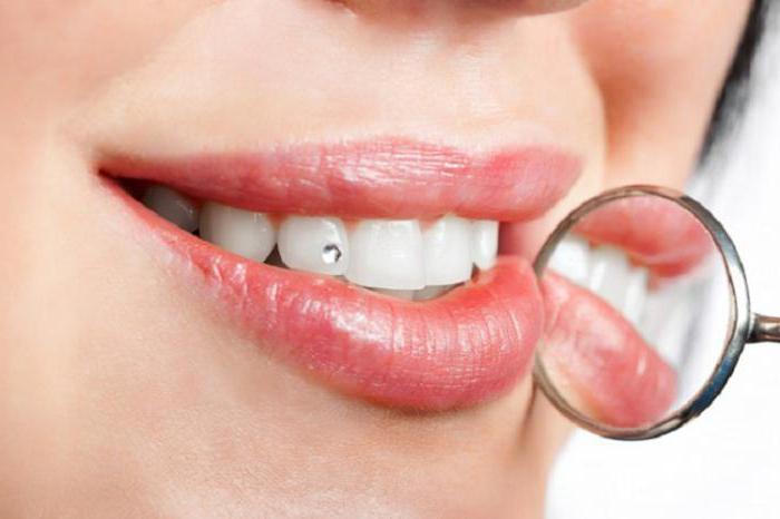 гречка после отбеливания зубов