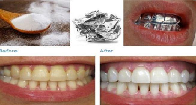 отбеливание зубов содой отзывы фото до и