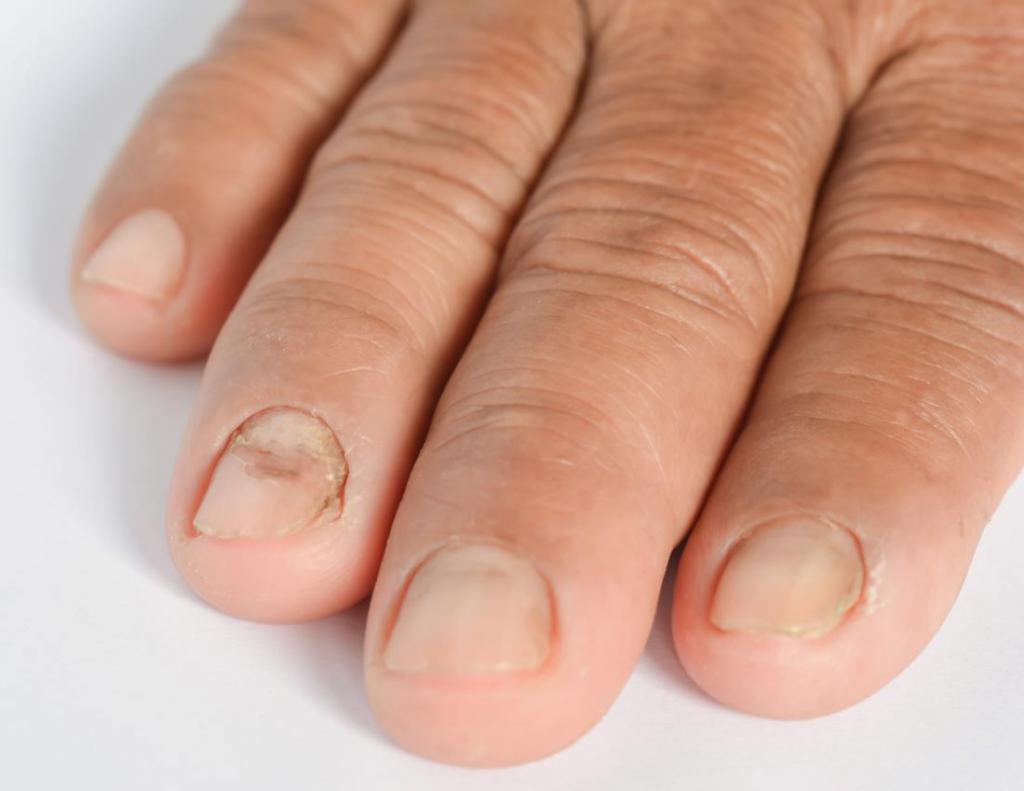 ногти отслаиваются от кожи на руках