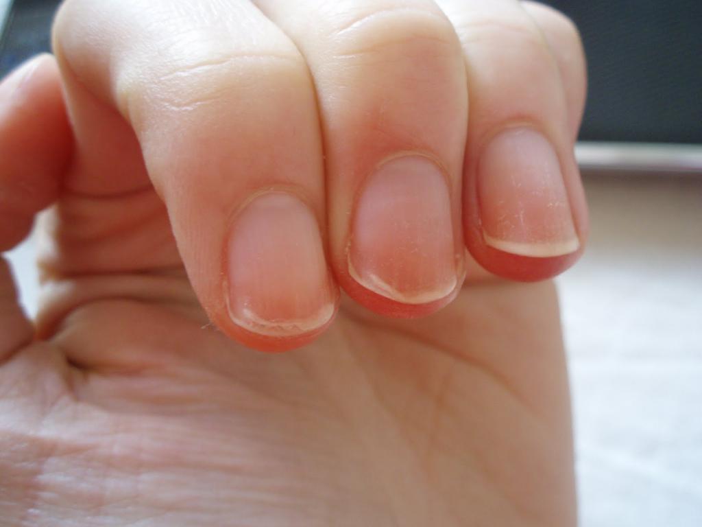отслаиваются ногти на руках: причины