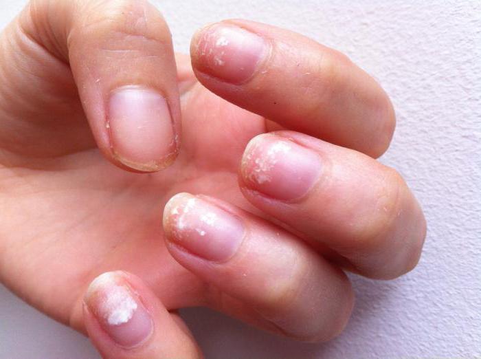 почему гель отходит от кончика натурального ногтя