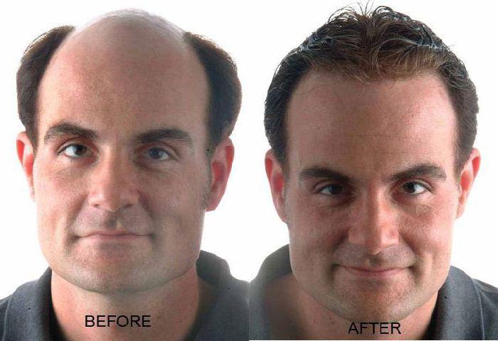 дарсонваль при выпадении волос как применять