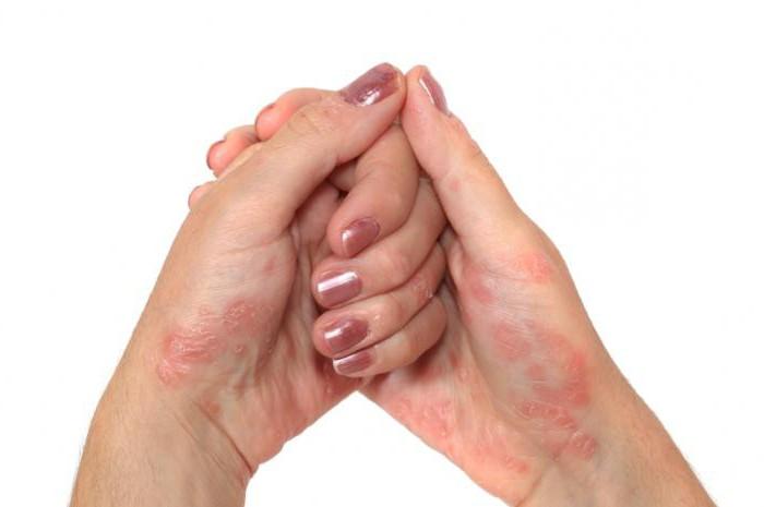 Лекарство от псориаза ксамиол - Псориаз