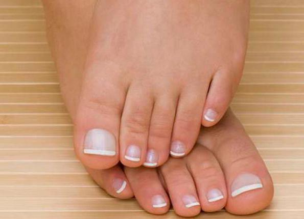 Вросшие ногти на ногах что делать чем лечить