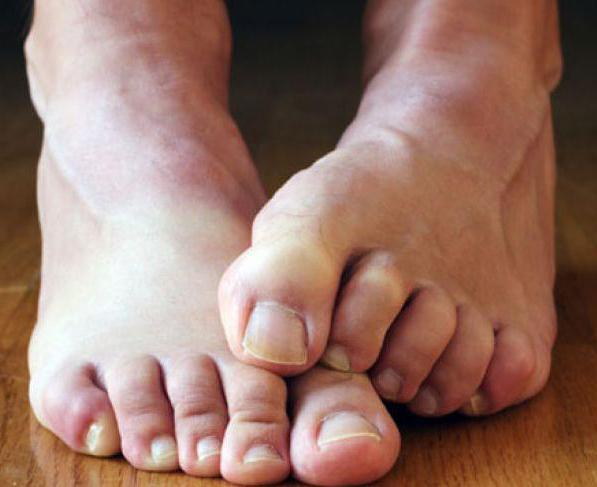 Задумайтесь, грибок на ногах, лечение его очень сложно и проблематично