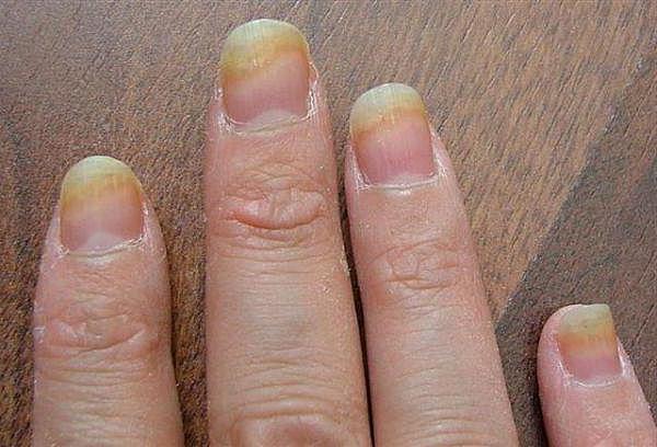Как уксусом лечить грибок ногтей советы, лечение.