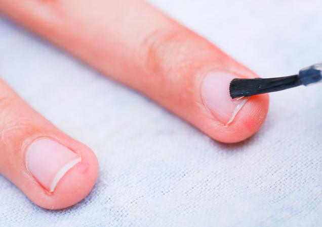 деформация ногтей на руках виды причины