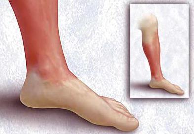 рожистое воспаление ноги фото симптомы и лечение