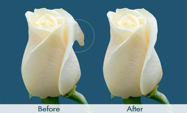 лабиопластика фото до и после у женщин