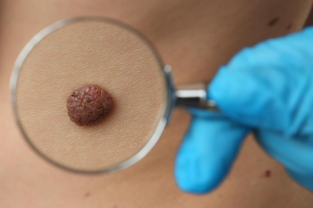 Консультация у высококвалифицированного онколога