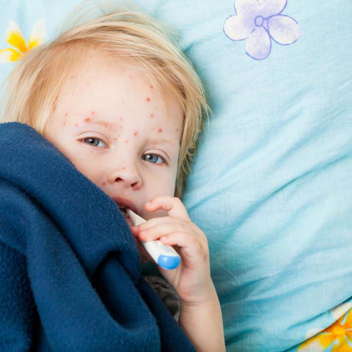 признаки энтеровируса у детей