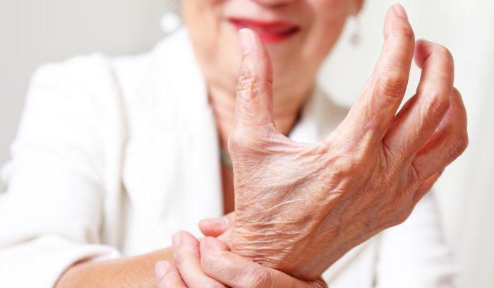 ревматоидный артрит первые симптомы