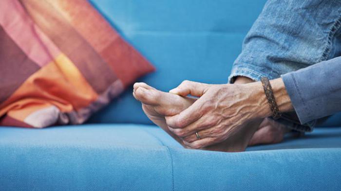 деформирующий артроз суставов стопы