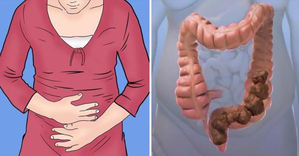 проблемы кишечника запор