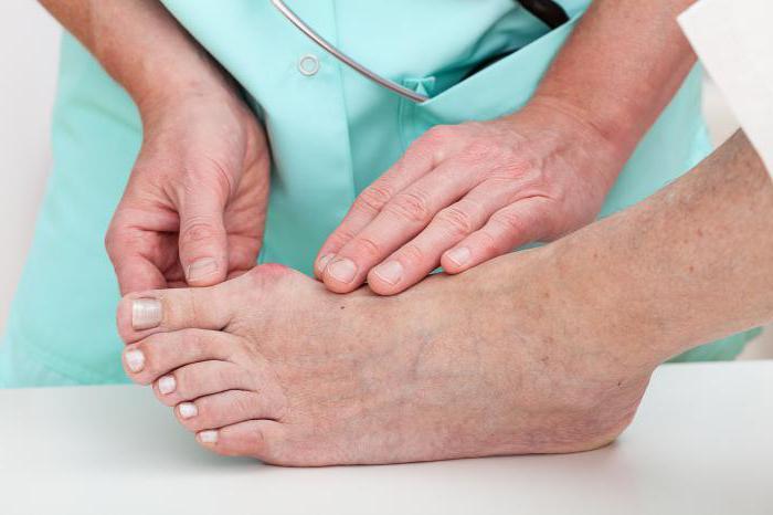 поперечное плоскостопие симптомы и лечение