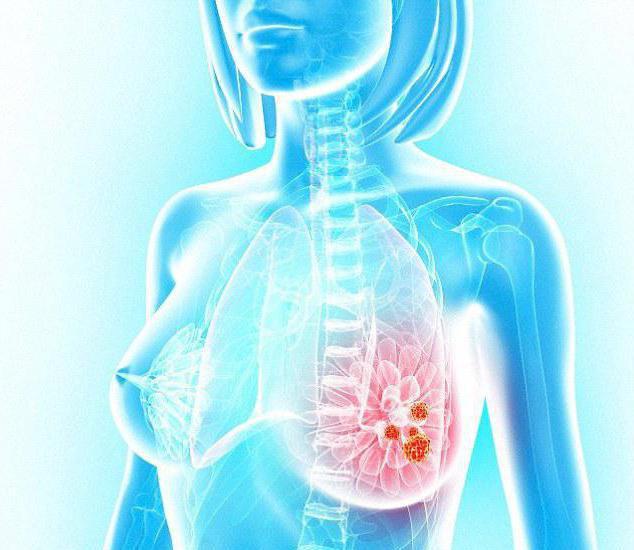 Мастит у некормящих женщин: симптомы, причины, лечение