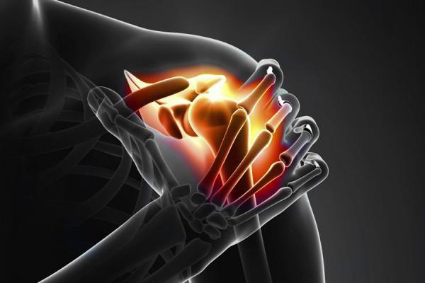лечение тендинита плечевого сустава