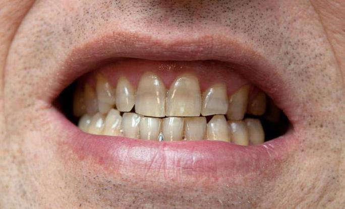 отбеливание зубов пятнами