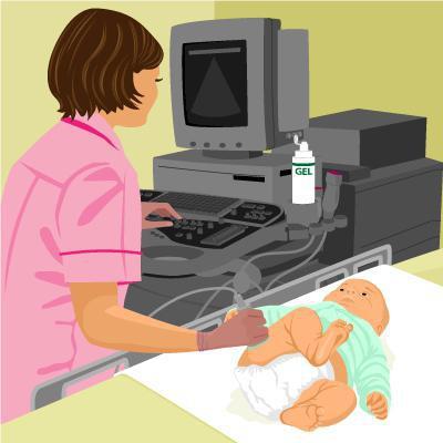 признаки незрелости тазобедренных суставов новорожденных