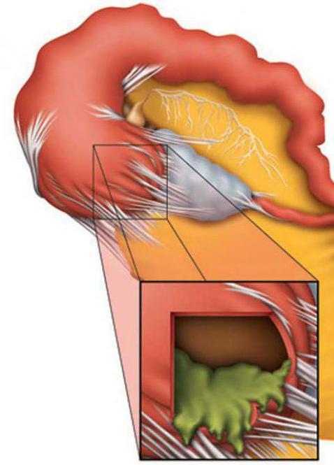 Беременность при гидросальпинксе