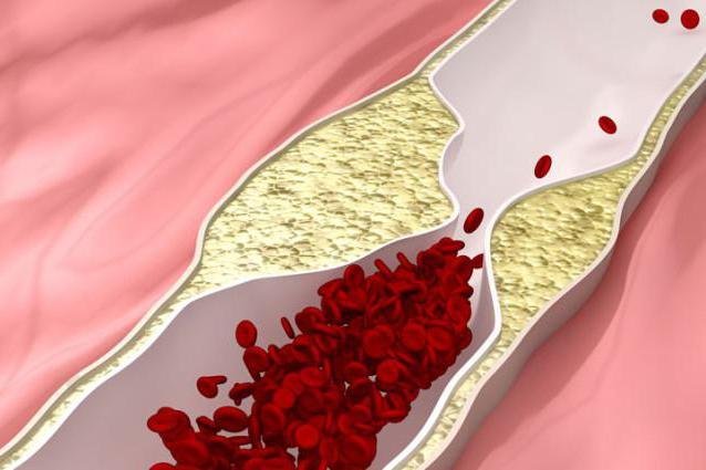 атеросклероз стенозирующий