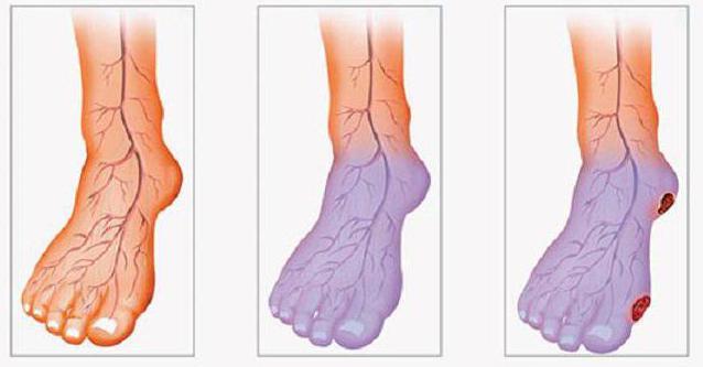 стенозирующий атеросклероз нижних конечностей