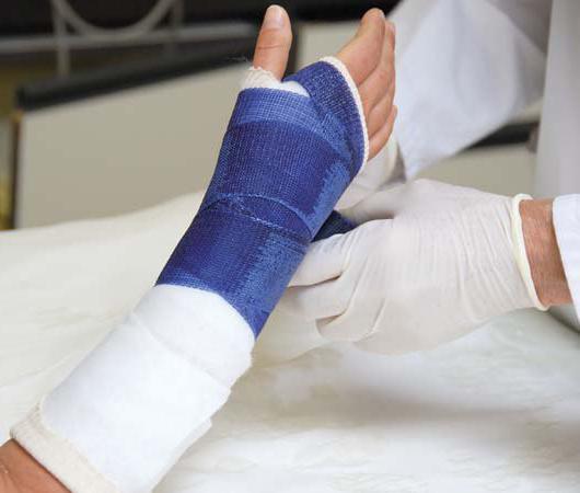 гипс при переломе ладьевидной кости