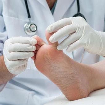 как лечить кандидоз ногтей