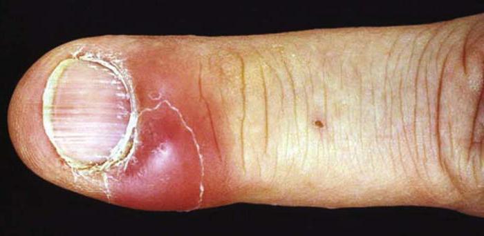 кандидоз ногтей фото
