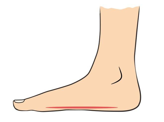 Продольное плоскостопие 2 степени: диагностика, особенности лечения