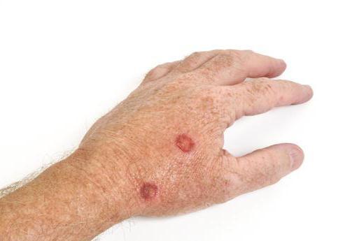 солнечный кератоз кожи