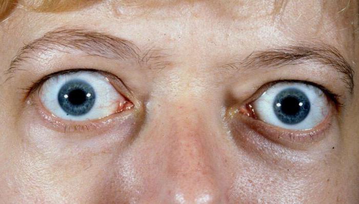 глаза на выкате