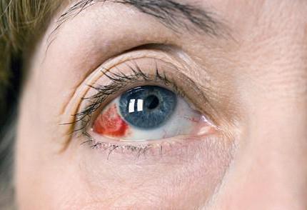 инсульт глаз