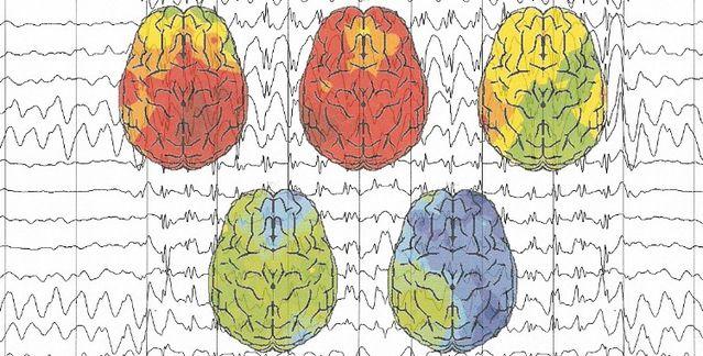 EEG principle