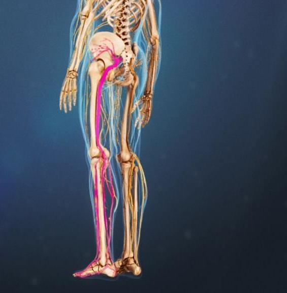 Если застудил седалищный нерв: симптомы и методы лечения. Массаж при ишиасе
