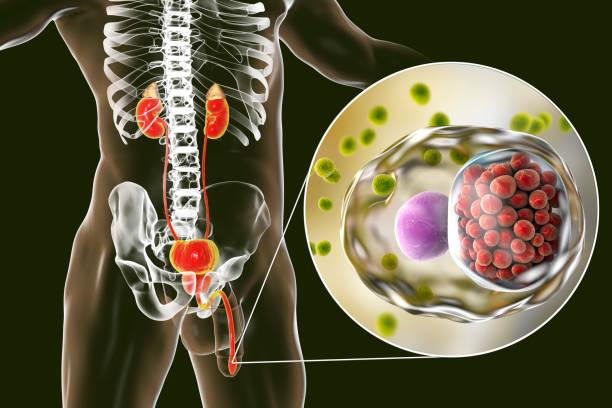 causes urethritis